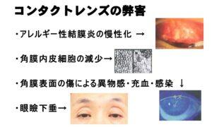 レーシックは安全?手術1000件の眼科医が教える、自分にとって最適な手術の受け方の画像2