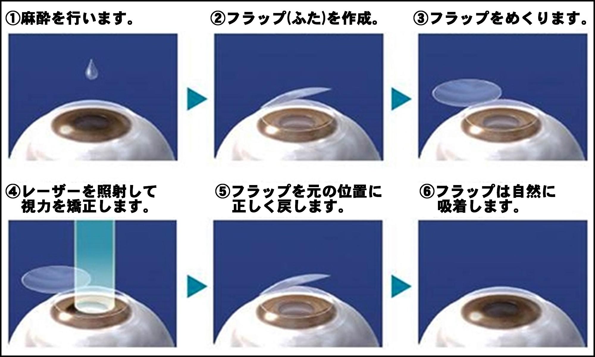 レーシックは安全?手術1000件の眼科医が教える、自分にとって最適な手術の受け方の画像3