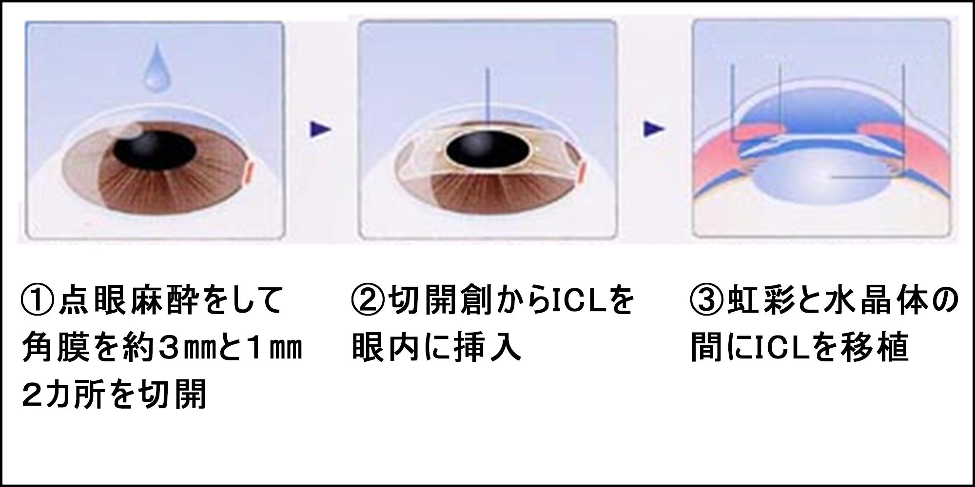 レーシックは安全?手術1000件の眼科医が教える、自分にとって最適な手術の受け方の画像4