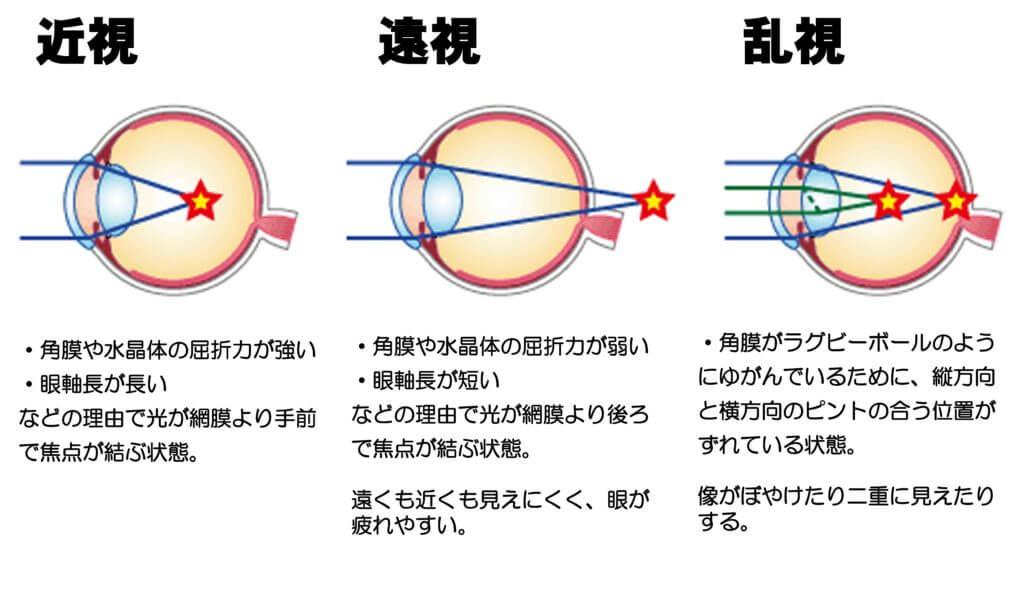 レーシックは安全?手術1000件の眼科医が教える、自分にとって最適な手術の受け方の画像1