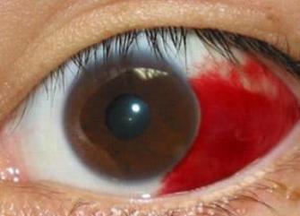40代から高まる失明のリスク(前編)糖尿病網膜症がなかなか減らない理由の画像1