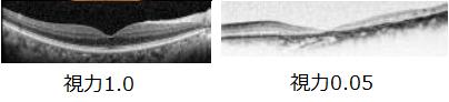 40代から高まる失明のリスク(前編)糖尿病網膜症がなかなか減らない理由の画像3