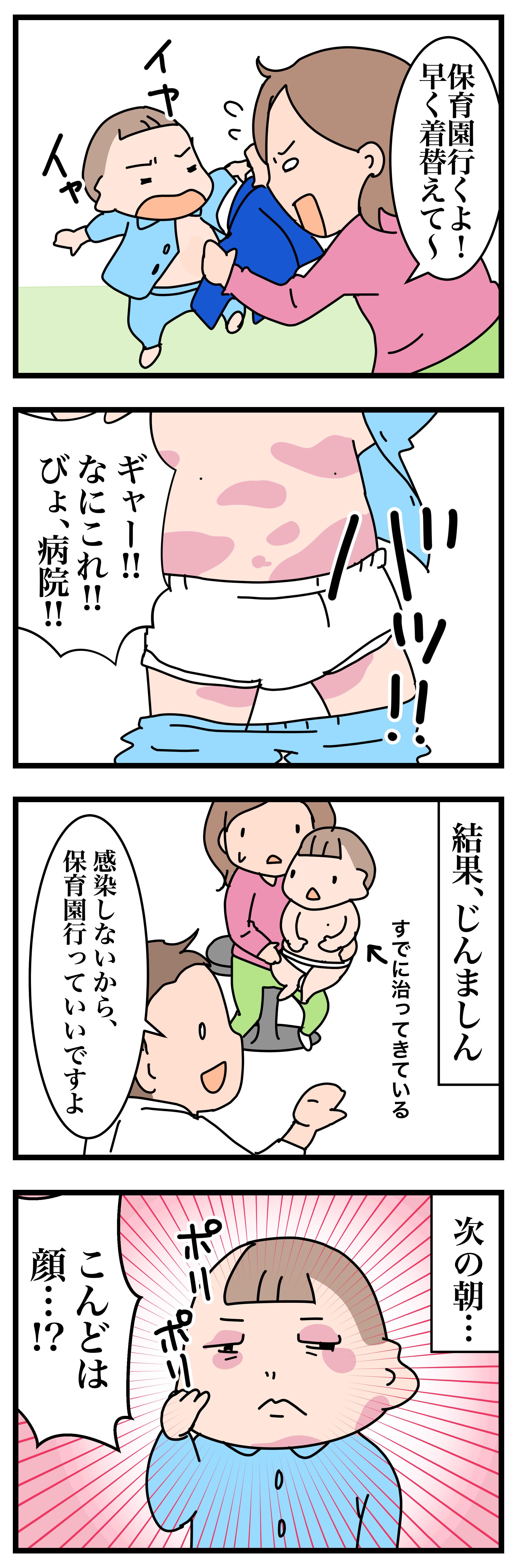 子どもの肌に突然できた赤いブツブツは何?すぐに消える発疹はじんましんかもの画像1