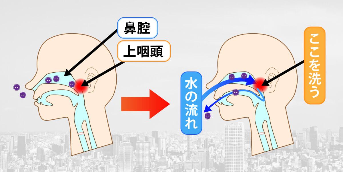 コロナ予防には「鼻うがい」が効果的!鼻うがいがうがいよりもいい理由を解説の画像2